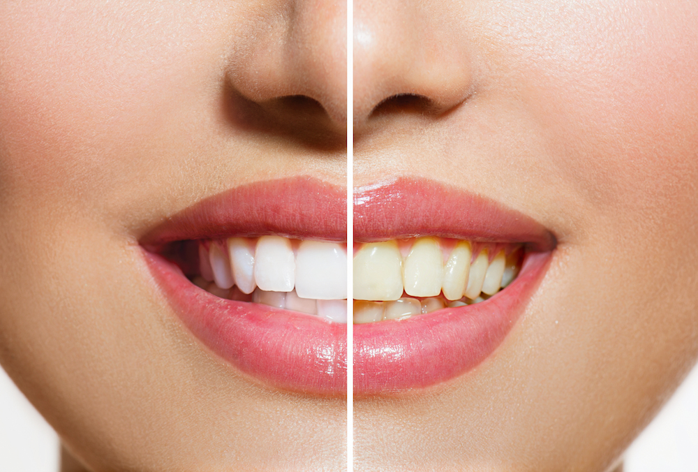 Stained Teeth | 50583 dentist